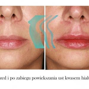 Asymetria ust przed i po Poznań Biogenica