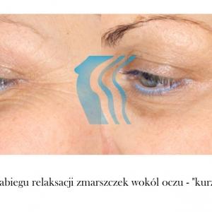 Botoks, działanie botoksu, zabieg przed i po Poznań Biogenica