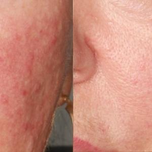 Laser Cutera V zamykanie naczynek przed i po Poznań Biogenica