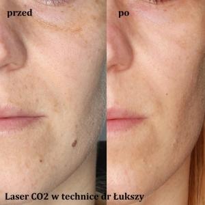Frakcjonowanie laserowe przed i po Poznań Biogenica
