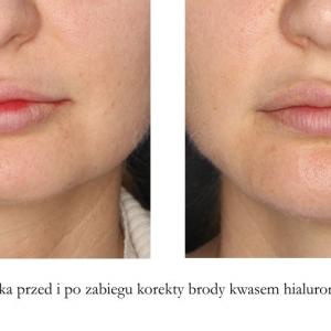 korekta brody kwasem hialuronowym 2 przód