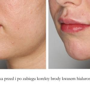 korekta brody kwasem hialEfekt zabiegu korekty/wypełniania brody kwasem hialuronowym.uronowym bok 4