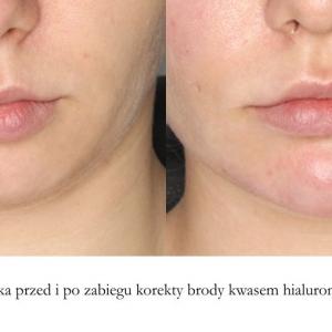 korekta brody kwasem hialuronowym przód 3