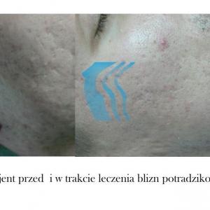 Leczenie blizn potrądzikowych laserem co2 przed i po Poznań Biogenica