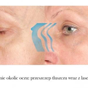 Odmładzanie okolic oczu przeszczep tłuszczu przed i po Poznań Biogenica