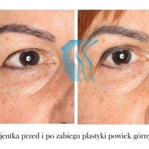Lifting powiek, blepharoplastyka, plastyka powiek górnych Poznań Biogenica