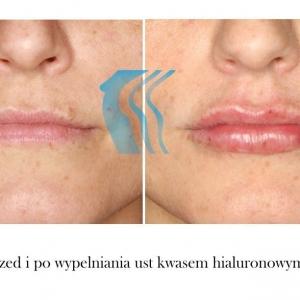 Powiększanie wypełnianie ust kwasem hialuronowym przed i po Poznań Biogenica