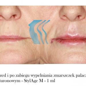 Wypełnianie zmarszczek palacza Poznań Biogenica