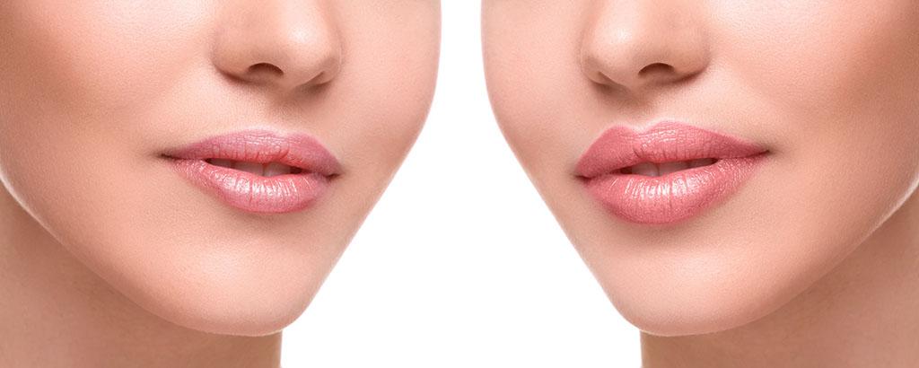 Beauty Lips Medycyna Estetyczna Poznań Biogenica