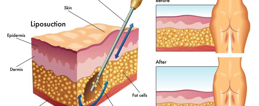 Liposukcja, a lipoliza - na czym polega