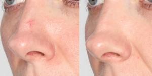 Laserowe zamykanie naczynek na nosie