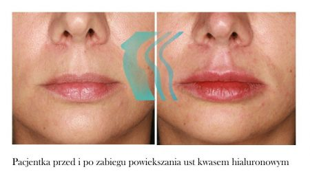 Asymetria Ust Przed i Po Medycyna Estetyczna Biogenica Poznań