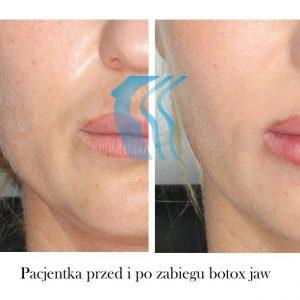 Botoks Jaw Poznań Biogenica
