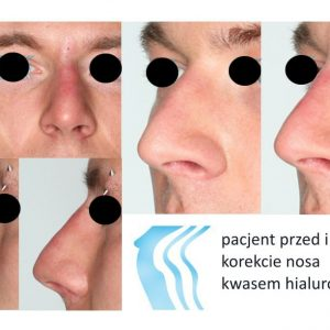 Korekta Nosa Poznań Biogenica
