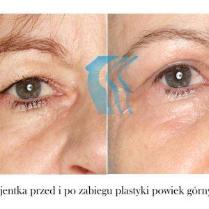 Plastyka Powiek Górnych Poznań Biogenica