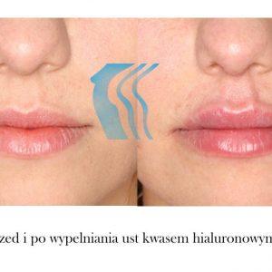 Powiększanie Wypełnianie Ust Kwasem Hialuronowym Poznań Biogenica