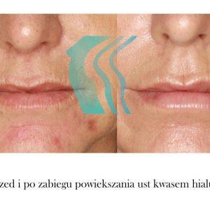 Zamykanie Naczynek Na Twarzy Poznań Biogenica