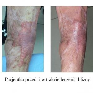 Leczenie blizn pooparzeniowych powypadkowych przed i po Poznań Biogenica