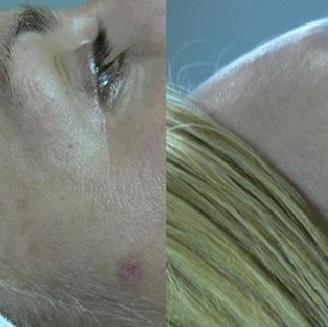 Leczenie przebarwień dermalen przed i po Poznań Biogenica