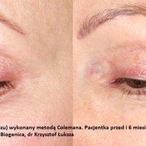 lipofilling-przeszczep-tluszczu-poznan-biogenica-1