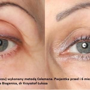 lipofilling-przeszczep-tluszczu-poznan-biogenica-5
