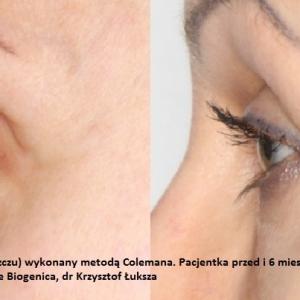 lipofilling-przeszczep-tluszczu-poznan-biogenica-6