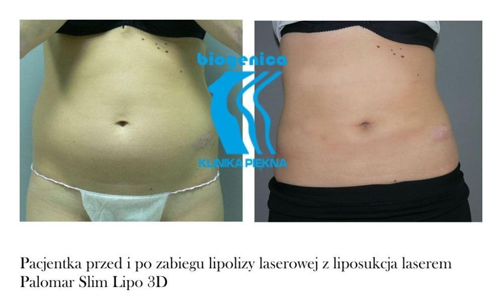 Slim Lipo Przed I Po Poznań Biogenica