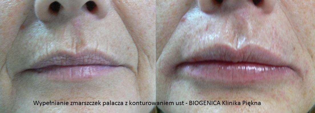 Odmładzanie Twarzy Przed I Po Poznań Biogenica