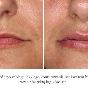 powiększanie ust kwasem hialuronowym 1 ml przed i po galeria lipiec 2016 2