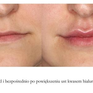powiększanie ust kwasem hialuronowym 1 ml przed i po galeria lipiec 2016