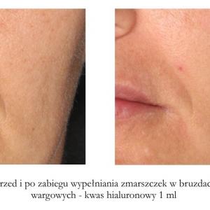 Wypełnianie bruzd nosowo-wargowych kwasem hialuronowym