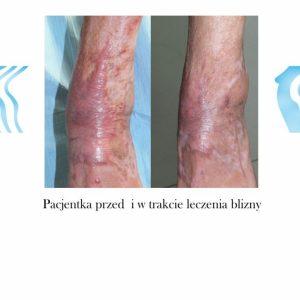 Leczenie Blizn Poznań Biogenica