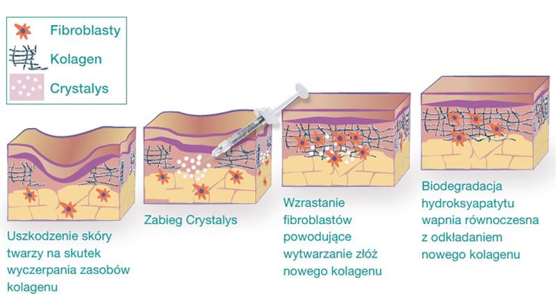 Crystalys Zasada Działania Poznań Biogenica