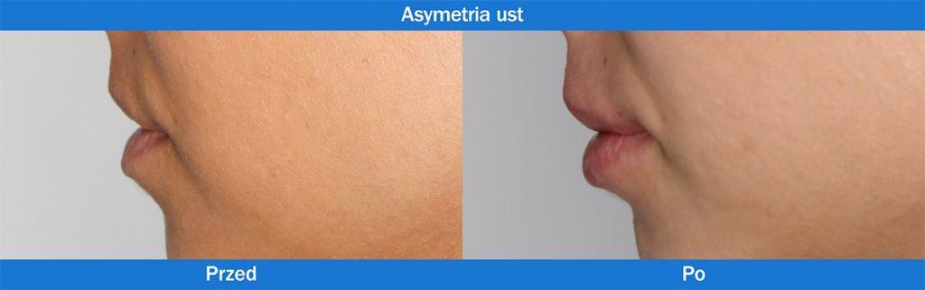 Asymetria ust