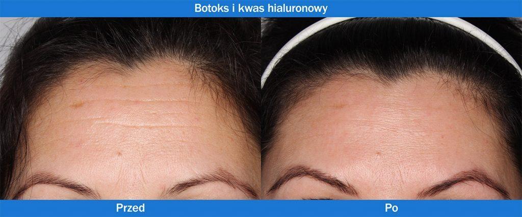 Botoks i kwas hialuronowy