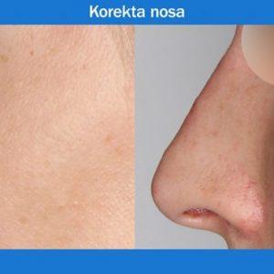 Korekta nosa