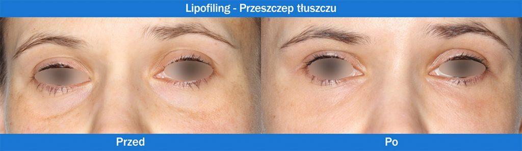 Lipofilling - Przeszczep tłuszczu