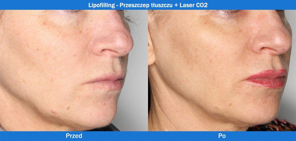 Lipofilling - Przeszczep tłuszczu + Laser CO2