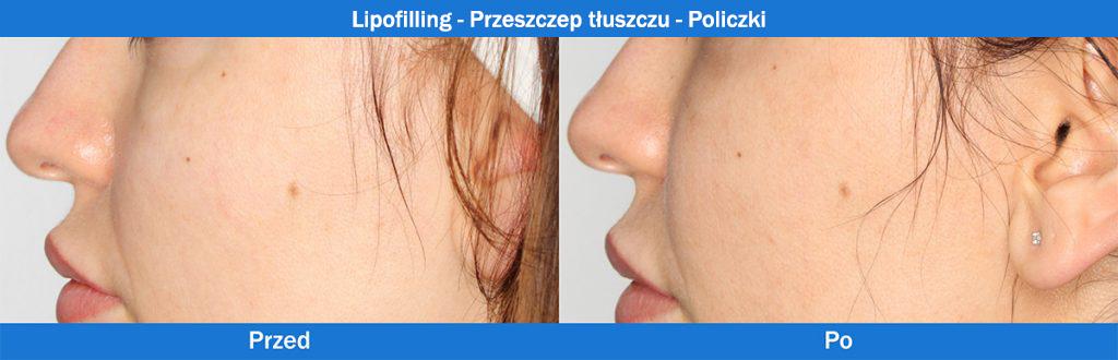 Lipofilling - Przeszczep tłuszczu - Policzki