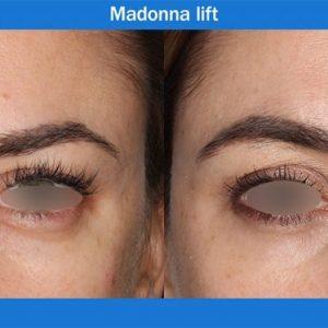Madonna lift